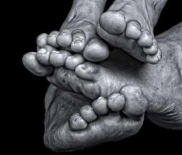 alte Füße
